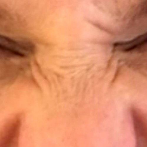 Bunny Lines with Botox Training Courses