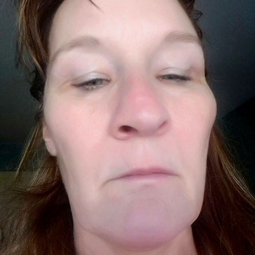 Dermal Filler Cheeks Training