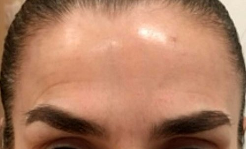 Forehead Lines with Botox Courses