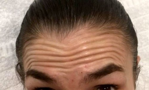 Forehead Lines with Botox Training Courses