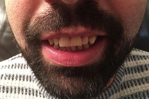 Gummy Smile with Botox Courses