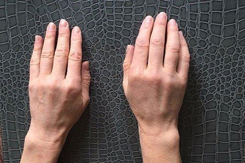 Dermal Filler for Hands Training