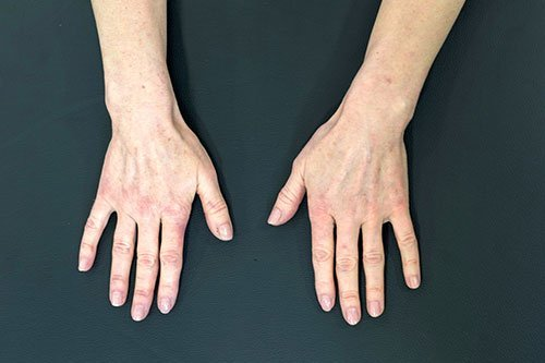 Dermal Fillers for Hands Training Course