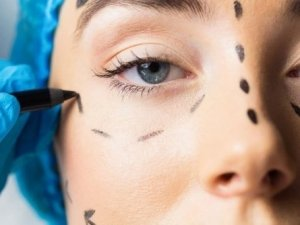 Botox Masterclass Training in Birmingham