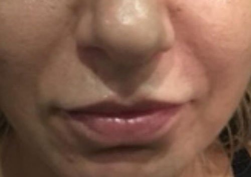 Lips Fillers Training Courses