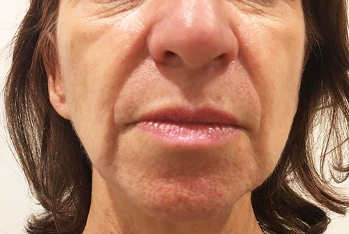 Marionette Lines Botox Training Courses