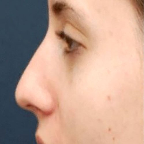 Mobile Nose with Dermal Fillers Courses