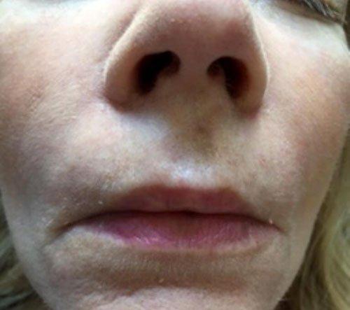 Nasolabial Training in Dermal Fillers
