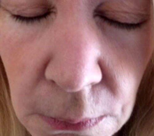 Nasolabial Botox Courses