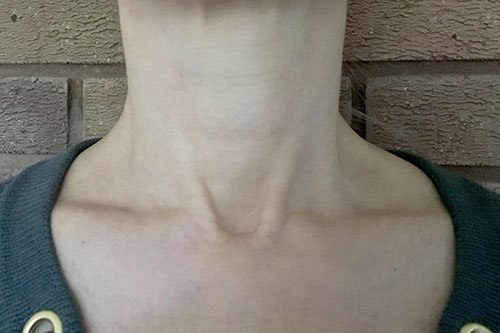 Neck Treatment with Botox Courses