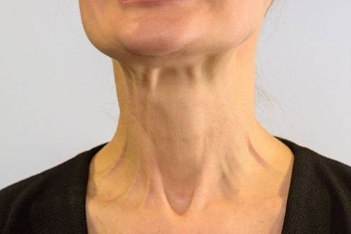 Neck Treatment with Botox Training Courses