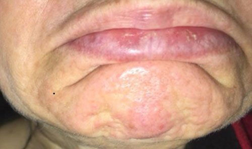 Pebbled Chin with Botox Courses Training