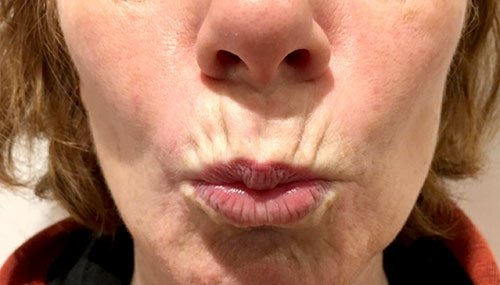 Smokers Lines with Botox Courses