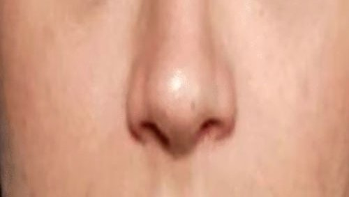 Wide Nostril with Dermal Fillers Training